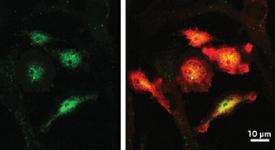 Manganese exposure helps spread Parkinson's disease protein.